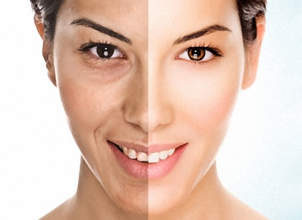 Peeling cu Laser - 38% Reducere