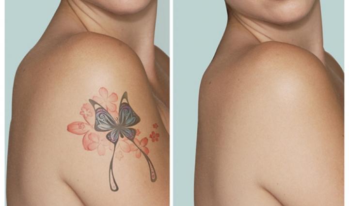 Eliminarea tatuajului cu ajutorul laserului - Serviciu efectuat de medici dermatologi specialisti